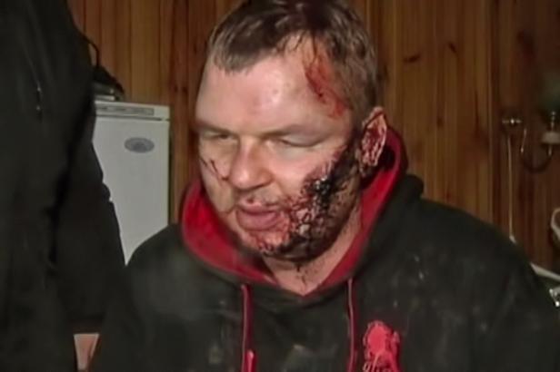 """""""Intregul meu corp este un dezastru. Puteti vedea acest lucru"""", a declarat Dmytro Bulatov repoterilor"""