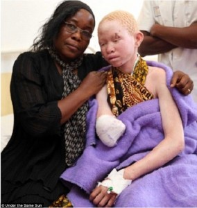 africa albinism malawi
