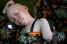 africa albinism victime